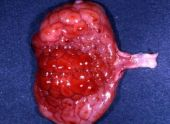 Bladder infection (cystitis)